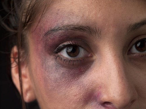 close-up on woman's face covered in bruises